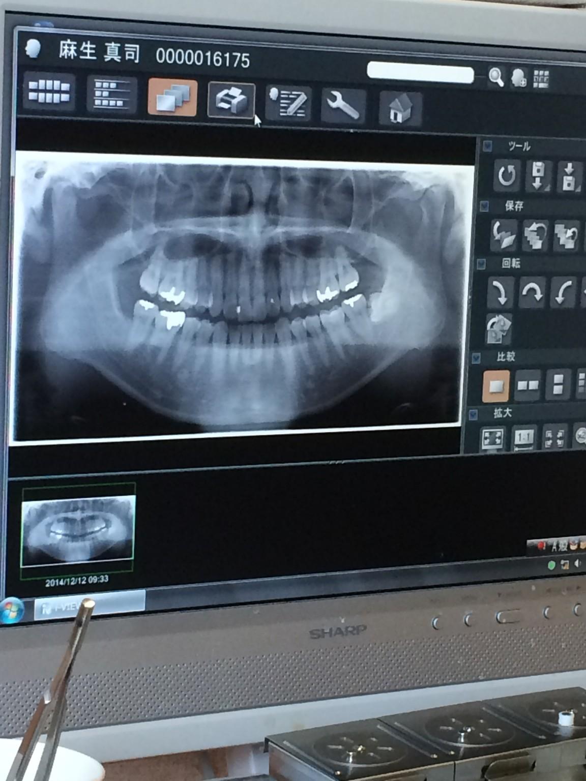 僕の歯のレントゲン写真です(´・ω・`)